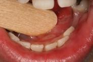 Фото к статье Детский стоматит: причины, виды и лечение